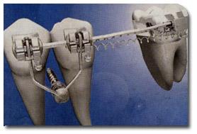 Mini-Implantate